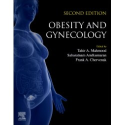 Obesity and Gynecology, 2nd Edition