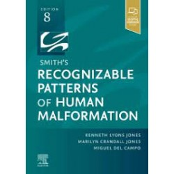 Smith's Recognizable Patterns of Human Malformation, 8E