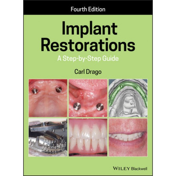 Implant Restorations: A Step-by-Step Guide, 4th Edition