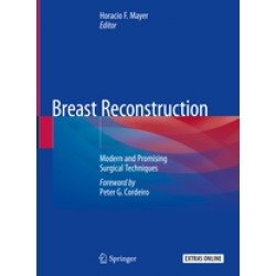 Breast Reconstruction - Modern and Promising Surgical Techniques