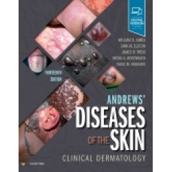 Andrews' Diseases of the Skin, 13th Edition