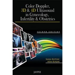 Color Doppler, 3D and 4D Ultrasound in Gynecology, Infertility and Obstetrics