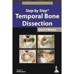 Step by Step: Temporal Bone Dissection