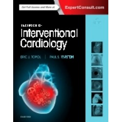 Topol, Textbook of Interventional Cardiology, 7th Edition