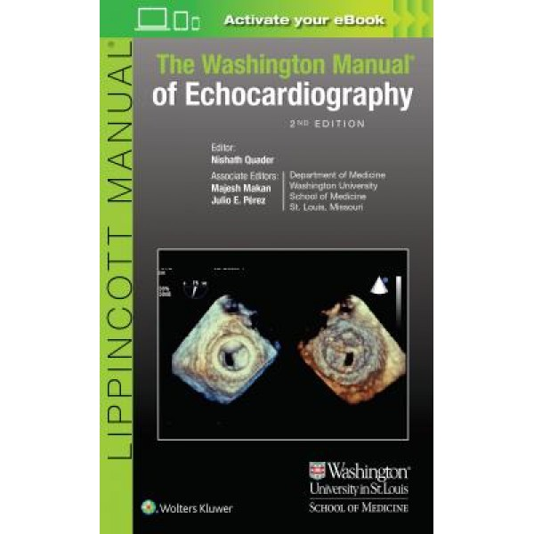 The Washington Manual of Echocardiography, 2e