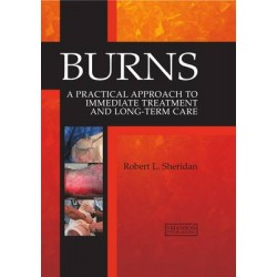 Burns - A Practical Approach to Immediate Treatment and Long Term Care